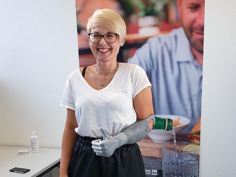 Erfahrungsbericht Armprothese #6