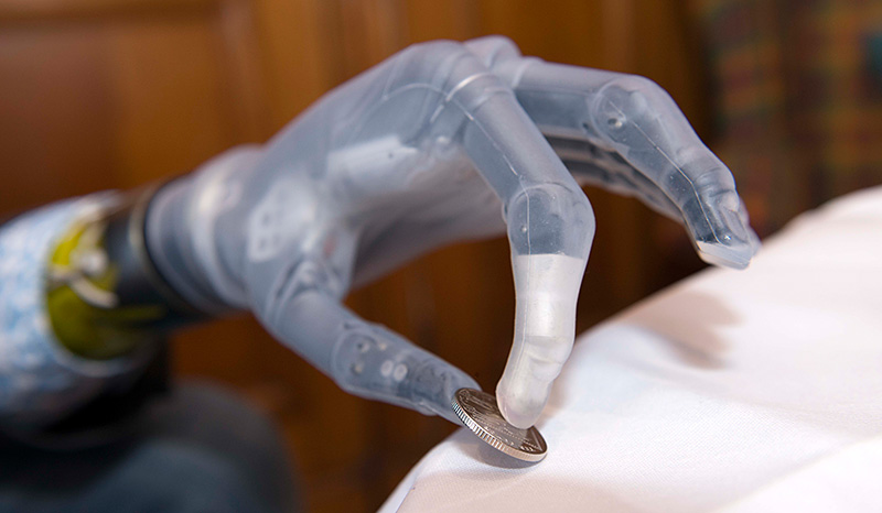 i-limb Handprothese #1
